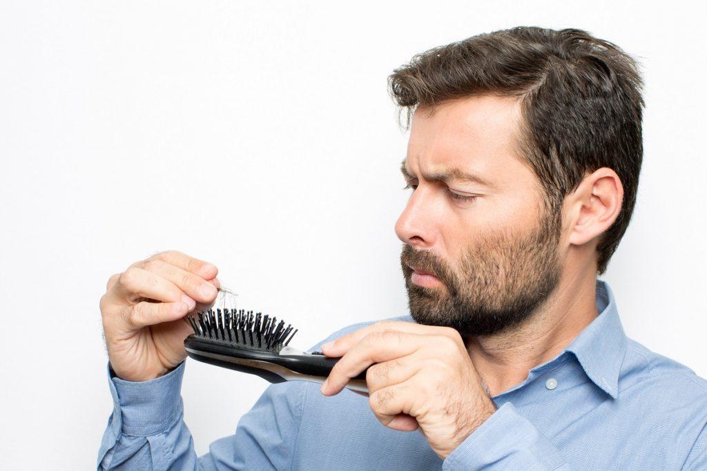 man experiencing hair loss